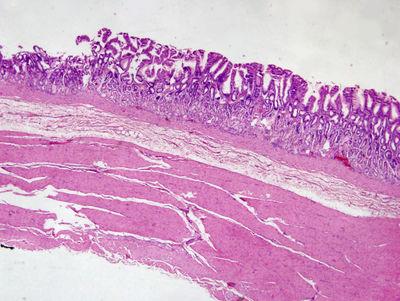 Stomach Histology - Stomach - histology slide -