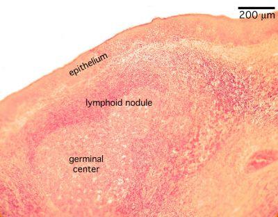 Tonsil Histology - Palatine tonsil (labels) - histology slide -