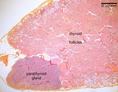 Thyroid Gland Histology Thyroid And Parathyroid Labels