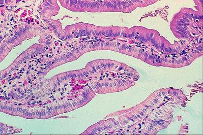 Pics For > Gallbladder Slide