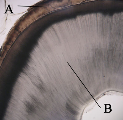 Tooth Histology - Cross section of tooth (labels ...