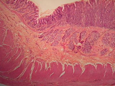 Small Intestine Histology - Stomach and duodenum ...