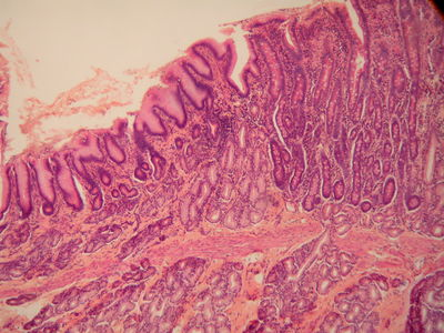 Stomach Histology - Stomach and duodenum - histology slide