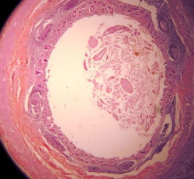 fran drescher ovarian cancer symptoms