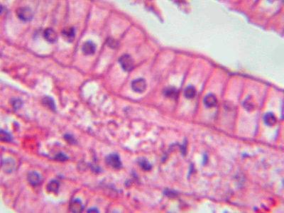 Epithelium Histology - Simple columnar epithelium ...