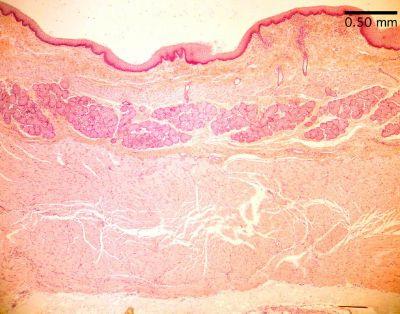Esophagus Histological Slide Esophagus Histology Slide
