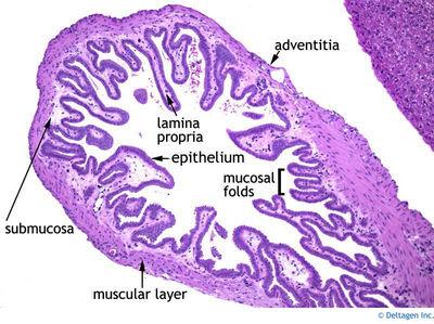 Gallbladder Histology - Gallbaldder (labels) - histology ...