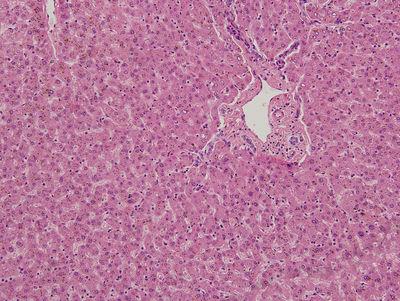 liver histology slide