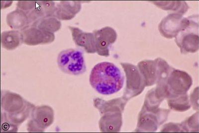Blood Histology - Neutrophil and eosinophil - histology slide -