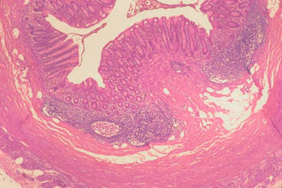 histology slide of bone